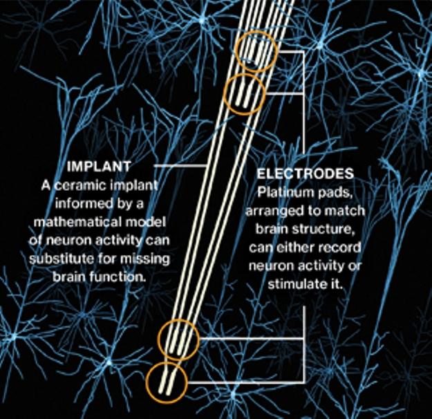 Protez hafıza için yeni bir teknoloji
