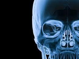 radyoloji
