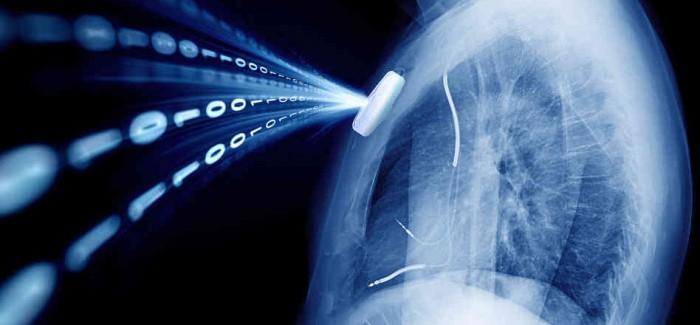 Akıllı Telefonlarda Akciğer Kanseri Sensörü