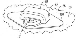 Garwood funding patent