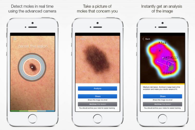 SkinVision-App