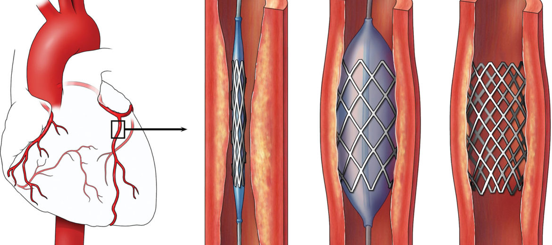 Tipik bir balon stent uygulaması
