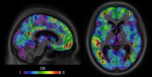 alzheimers-imaging
