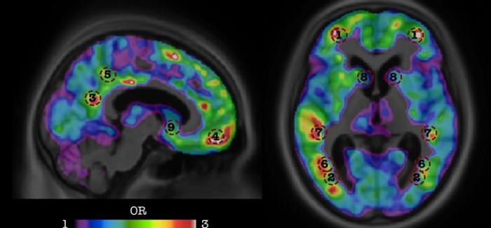 Yapay Zekâ Alzheimer'ı 2 Yıl Öncesinden Görebiliyor