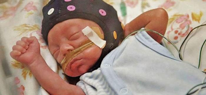 Yapay Zekâ Prematüre Bebeklerde Beyin Gelişimini Ölçecek