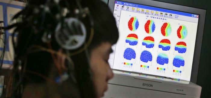 Epilepsi Nöbetlerini, Gerçekleşmeden Önce Fark Edebilen Yapay Zekâ Geliştirildi