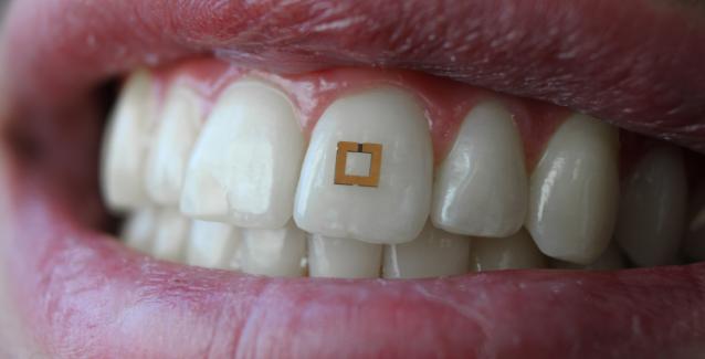 Ne Yiyip Ne İçtiğiniz Gelecekte Akıllı Dişlerden Sorulacak