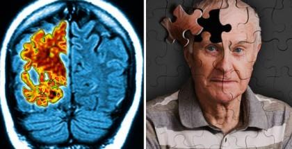 brain-scan-609875