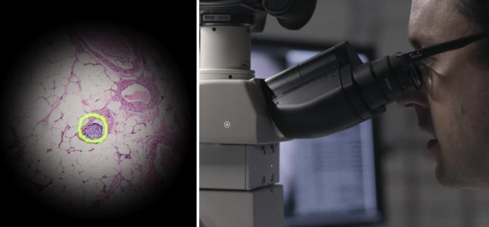 Google'ın Yapay Zeka ve Artırılmış Gerçeklikle Donattığı Mikroskoplar Kanser Teşhisini Kolaylaştıracak