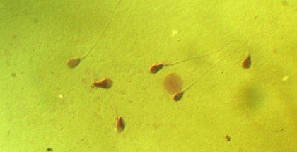 CRISPR sperm