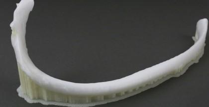 3D-yazici-kemik-uretme