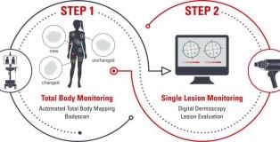 Fotofinder yapay zeka destekli görüntüleme sistemi