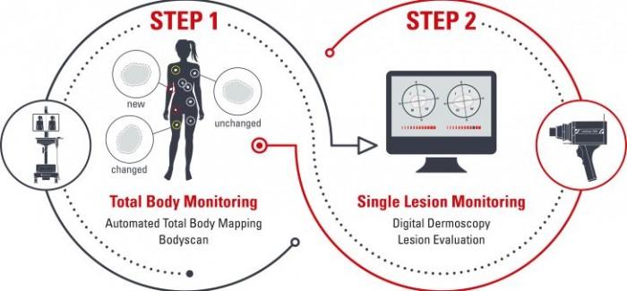 Yeni Nesil Teknoloji, Deri Kanserinin Teşhisinde Doktorlara Yardımcı Olacak