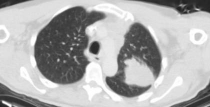 akciğer kanseri yapay zeka